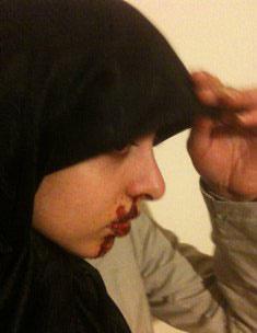 حمله به دختر محجبه ایرانی+ تصاویر