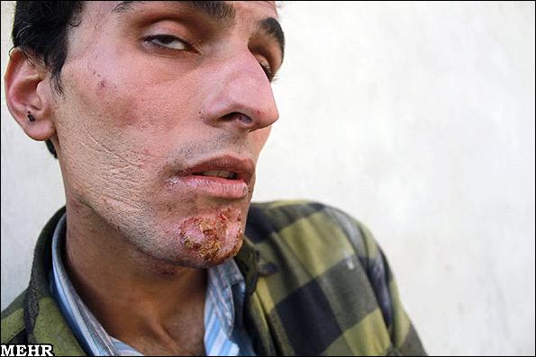 تصاویر دلخراش زخمهای اعتیاد