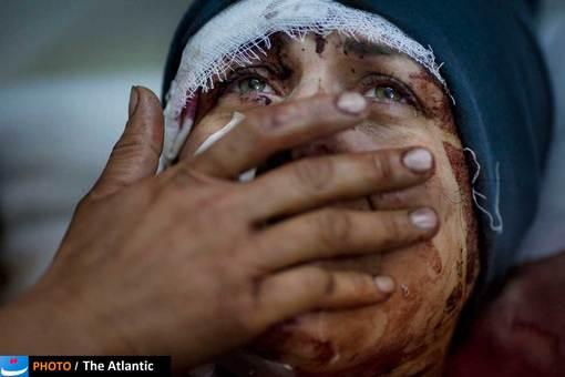 یکی از مجروحان درگیری های داخلی سوریه، نادیا همسر و پسرش در این درگیری ها از دست داد.