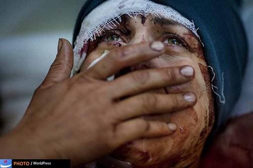 جنگ داخلی در سوریه هم در یک سال گذشته عکاسان را با موقعیت های عجیب و دردناکی مواجه کرده است. در این تصویر هم چهره مجروح و دردمند آیدا، که در جریان یک حمله موشکی همسر و دو فرزندش کشته شدند به سوژه دوربین رودریگو آبد آرژانتینی تبدیل شده است.