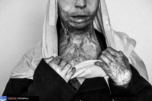 مجید سعیدی از آژانس عکس گتی ایمجیز در بخش مسائل معاصر جایزه دوم بخش مجموعه عکس را با مجموعه ای تحت عنوان Life in War از زندگی در افغانستان به دست آورده است.